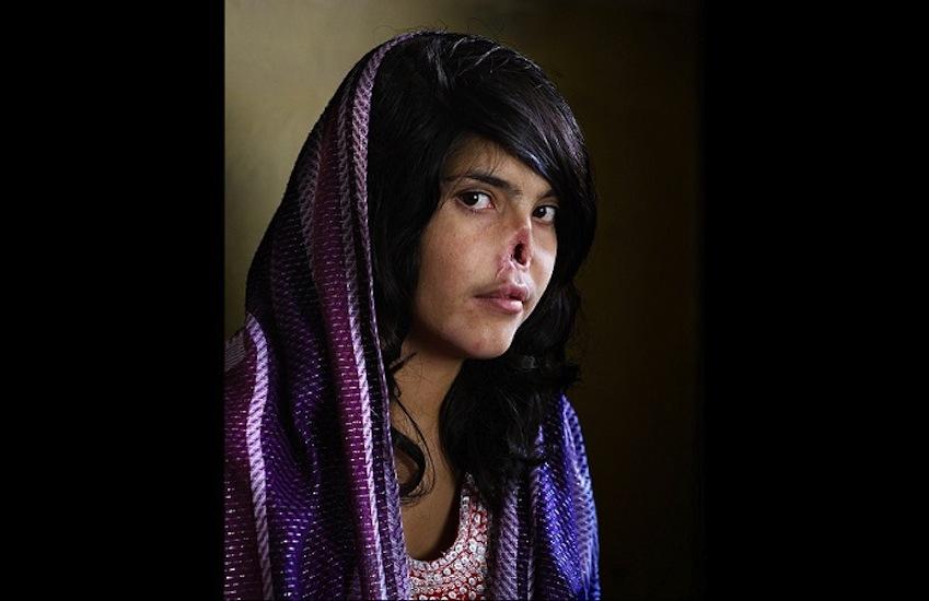 11. Bibi Aisha. Foto: Jodi Bieber / Time Magazine.
